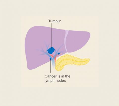 LIVER CANCER BLOG