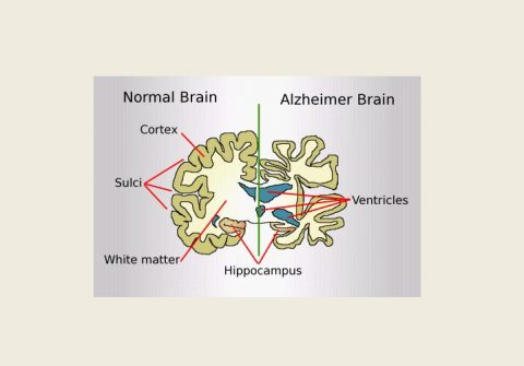 Hormone therapy linked to Alzheimes risk