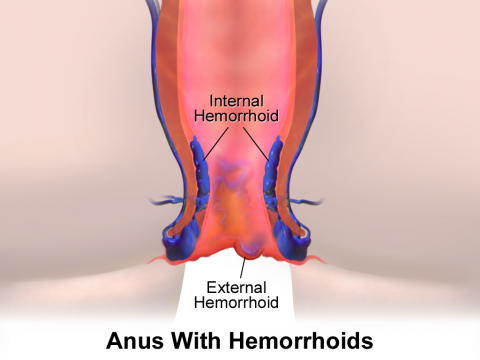 HEMORRHOIDS SIGNS