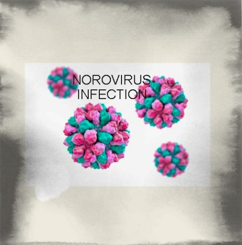NOROVIRUS INFECTION