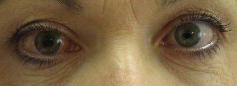HYPHEMA GLAUCOMA