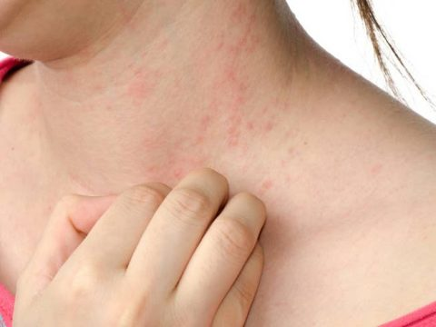 Moms of Eczema patients sleep worse