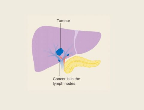 LIVER CANCER CAUSES AND TREATMENT